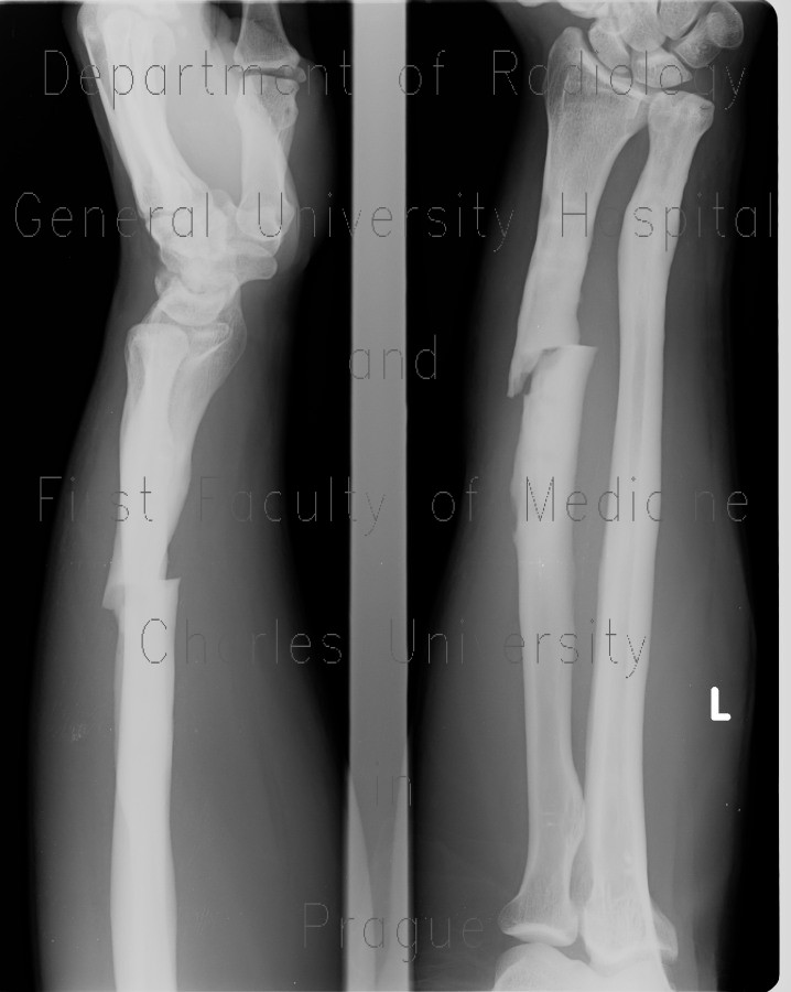 Radiology image - Fracture of the shaft of radius, secondary healing, malunion: Extremity, Bone: X-ray - Plain radiograph