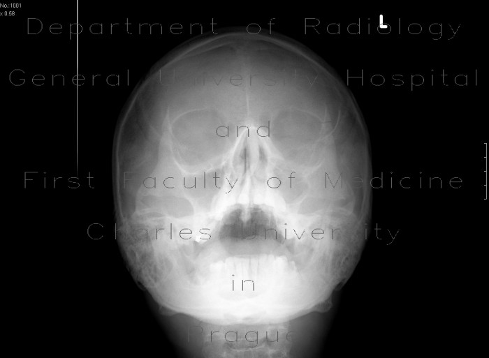 Radiology image - Fracture of zygomaticomaxillary complex, ZMK: Head and Neck, Bone: X-ray - Plain radiograph
