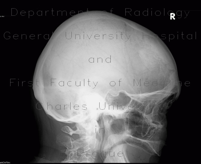 Radiology image - Frontal hyperostosis: Head and Neck, Bone: X-ray - Plain radiograph