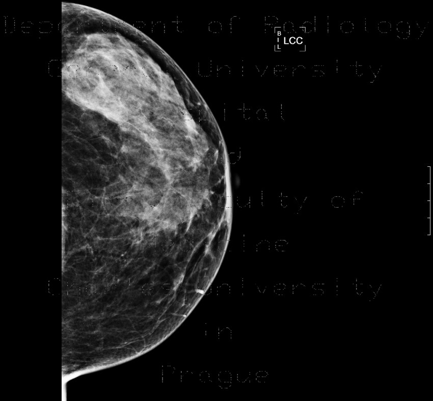 Radiology image - Glandular type, normal mammography, : Thorax, Breast: X-ray - Plain radiograph