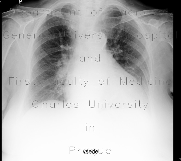 Radiology image - Goiter, struma: Thorax, Mediastinum and pleural cavity, Thyroid and Parathyroids: X-ray - Plain radiograph