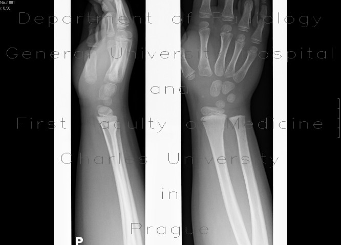 Radiology image - Greenstick fracture of distal radius: Extremity, Bone: X-ray - Plain radiograph