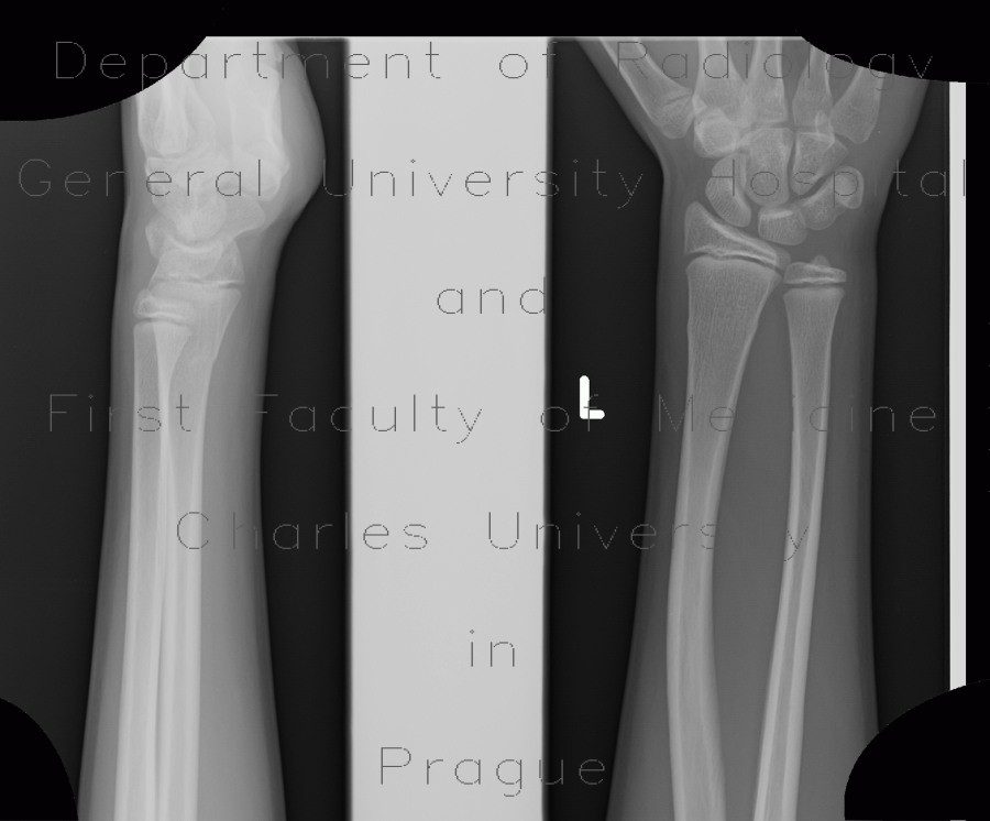 Radiology image - Greenstick fracture of radius: Extremity, Bone: X-ray - Plain radiograph