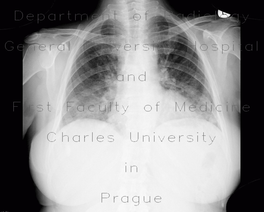 Radiology image - Ground-glass in acute leukemia, lymphocyte infiltration, peribronchovascular: Thorax, Lung: X-ray - Plain radiograph