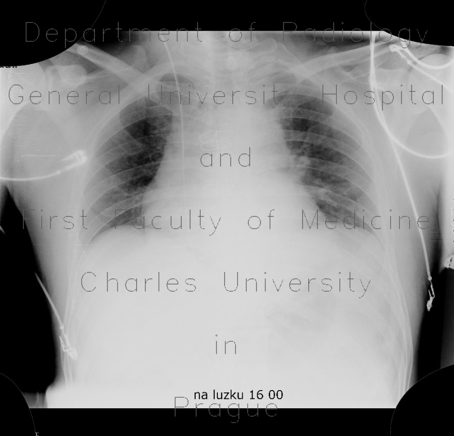 Radiology image - Guide wire in superior vena cava, forgotten: Thorax, Other, Vessels: X-ray - Plain radiograph