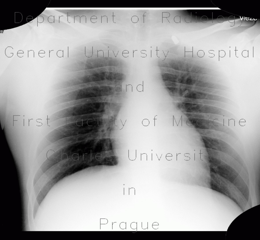 Radiology image - Gunshot wound, thorax, chest wall: Thorax, Other, Soft tissue: X-ray - Plain radiograph