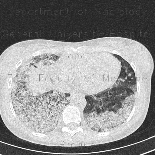 Radiology image - H1N1, atypical pneumonia: Thorax, Lung: CT - Computed tomography