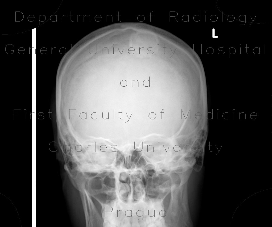 Radiology image - Hair clip, mimic of meningioma: Brain, Brain, Other: X-ray - Plain radiograph