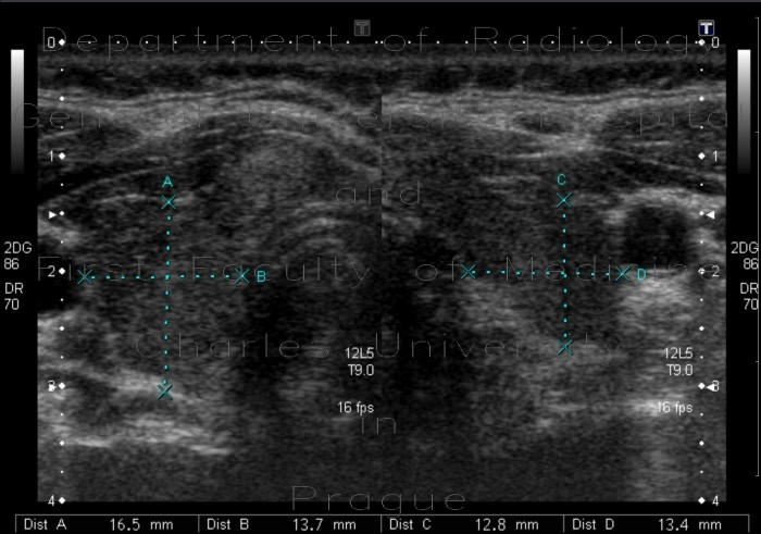 Radiology image - Hashitomo thyreoiditis: Head and Neck, Thyroid and Parathyroids: US - Ultrasound