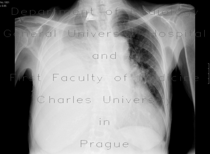Radiology image - Hemothorax: Thorax, Lung, Mediastinum and pleural cavity: X-ray - Plain radiograph