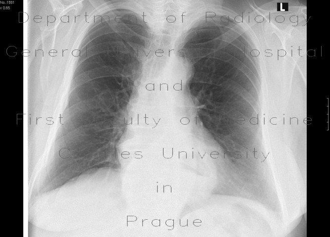 Radiology image - Hiatal hernia, chest radiograph: Thorax, Oesophagus: X-ray - Plain radiograph