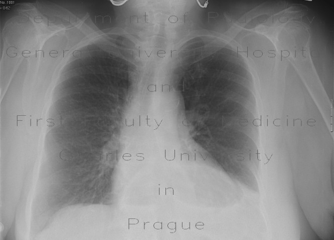 Radiology image - Hiatal hernia, chest radiograph: Thorax, Oesophagus, Stomach: X-ray - Plain radiograph