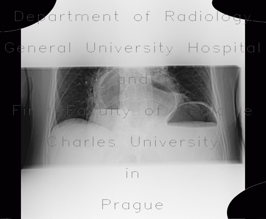 Radiology image - Hiatal hernia, gigantic: Thorax, Mediastinum and pleural cavity, Oesophagus, Stomach: X-ray - Plain radiograph