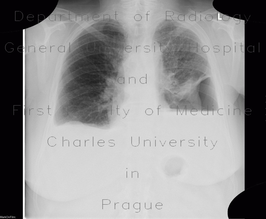 Radiology image - Hydropneumothorax: Thorax, Lung, Mediastinum and pleural cavity: X-ray - Plain radiograph