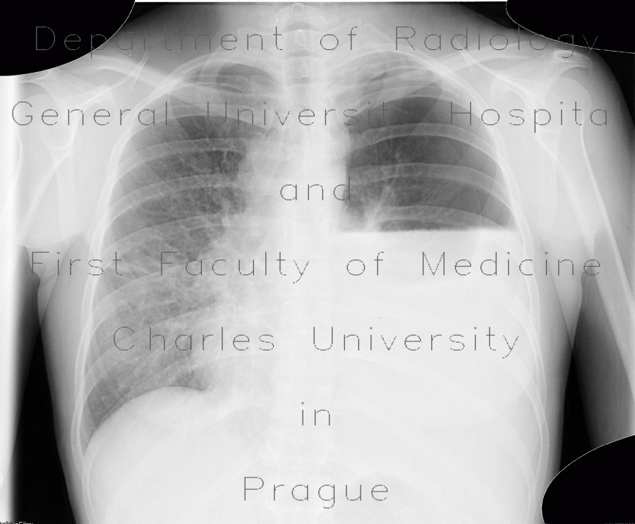 Radiology image - Hydropneumothorax, pneumothorax: Thorax, Lung, Mediastinum and pleural cavity: X-ray - Plain radiograph