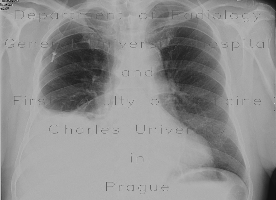 Radiology image - Hydrothorax, pleural effusion: Thorax, Mediastinum and pleural cavity: X-ray - Plain radiograph