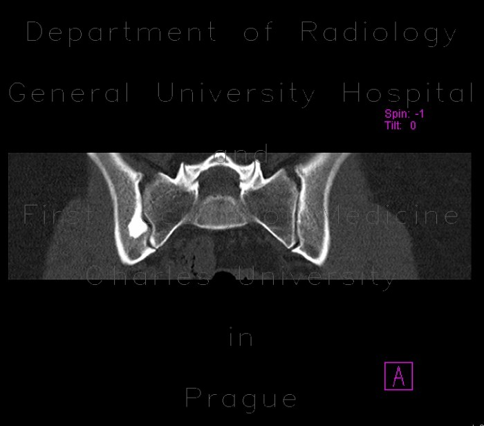 Radiology image - Hyperostosis triangularis ilii: Spine and Axial, Bone: CT - Computed tomography