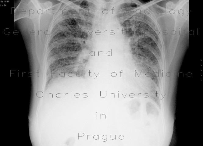 Radiology image - Idiopathic lung fibrosis: Thorax, Lung: X-ray - Plain radiograph