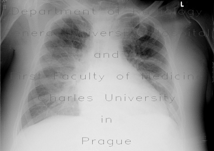 Radiology image - Interstitial lung edema: Thorax, Lung: X-ray - Plain radiograph