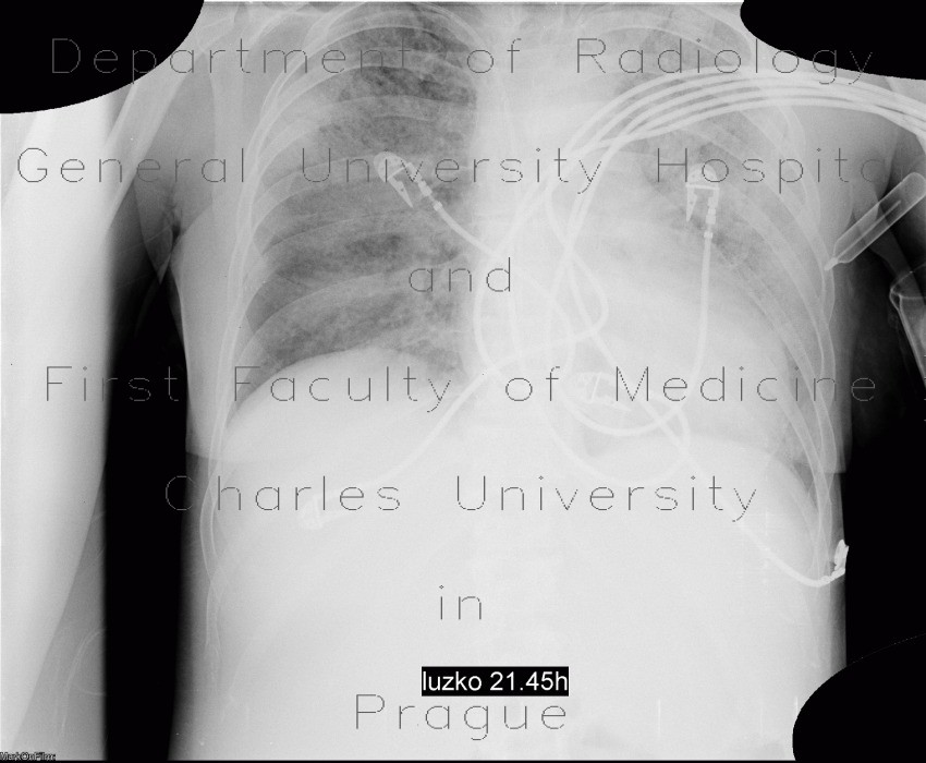 Radiology image - Intra-alveolar hemorrhage: Thorax, Lung: X-ray - Plain radiograph