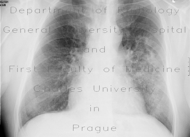 Radiology image - Intraalveolar hemorrhage: Thorax, Lung: X-ray - Plain radiograph