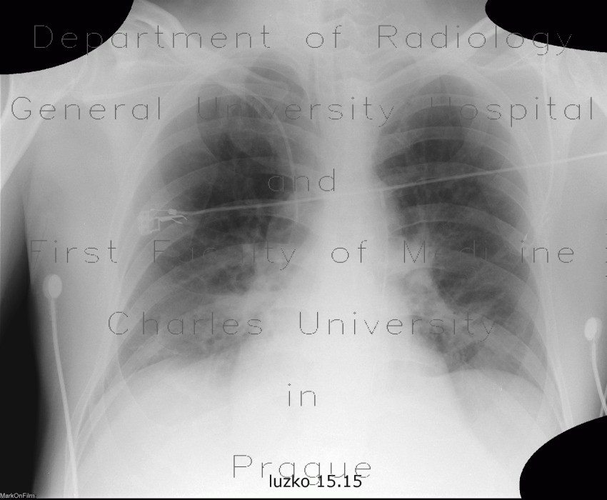 Radiology image - Intraaortic contrapulsation: Thorax, Vessels: X-ray - Plain radiograph