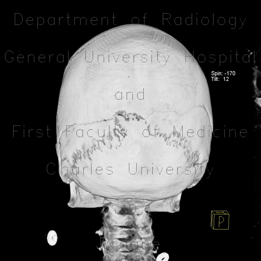 Radiology image - Intraparietal suture, accessory suture: Head and Neck, Bone: CT - Computed tomography