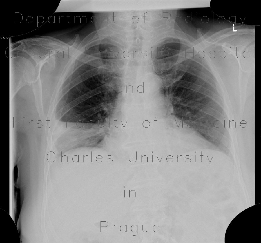 Radiology image - Lobar pneumonia: Thorax, Lung: X-ray - Plain radiograph