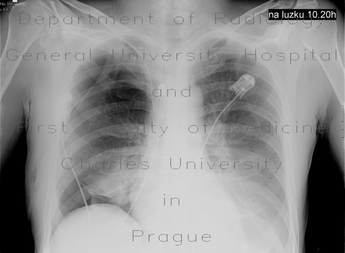 Radiology image - Lung bilobectomy, residual cavity, remaining lobe not expanded: Thorax, Lung, Mediastinum and pleural cavity: X-ray - Plain radiograph