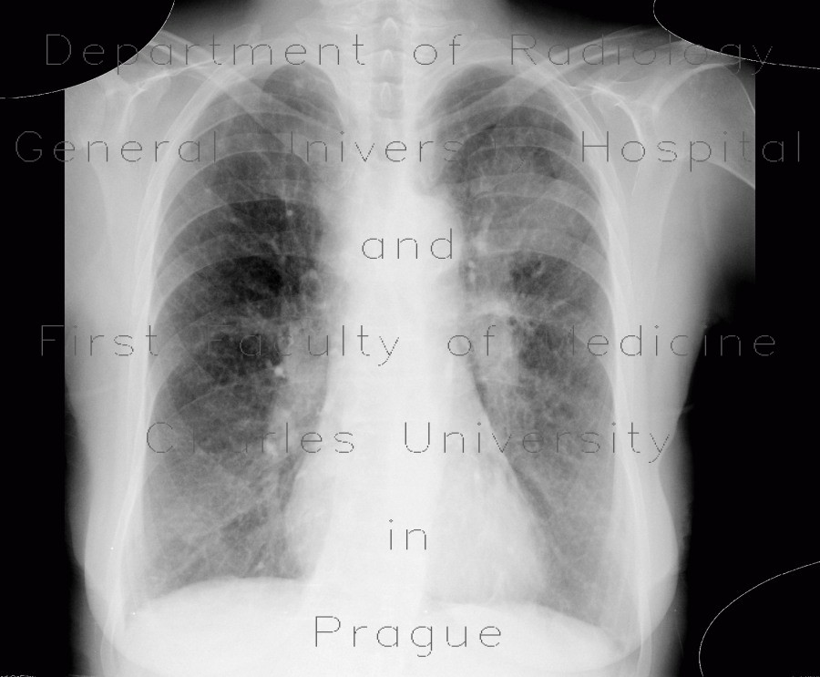 Radiology image - Lung carcinoma, carcinomatous lymphagiopathy, first radiograph: Thorax, Lung, Mediastinum and pleural cavity: X-ray - Plain radiograph