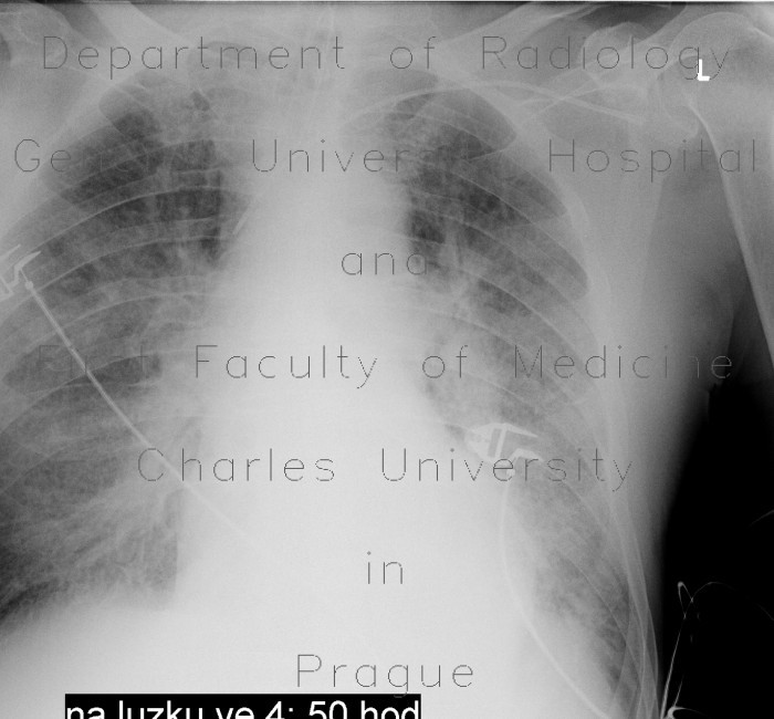 Radiology image - Lung congestion: Thorax, Lung: X-ray - Plain radiograph