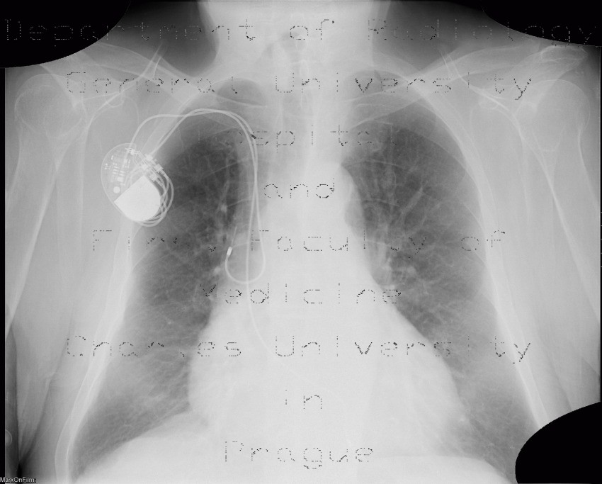Radiology image - Lung congestion, first degree: Thorax, Lung: X-ray - Plain radiograph
