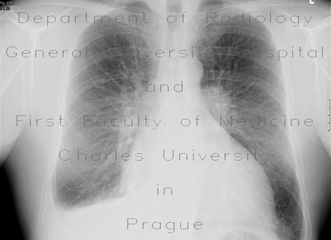 Radiology image - Lung congestion, pleural effusion: Thorax, Lung: X-ray - Plain radiograph