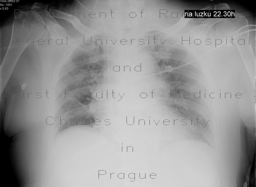 Radiology image - Lung congestion, supine: Thorax, Lung: X-ray - Plain radiograph