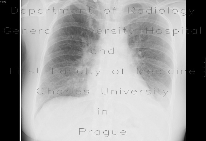 Radiology image - Lung congestion, uremic lung: Thorax, Lung: X-ray - Plain radiograph