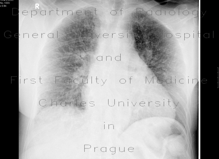 Radiology image - Lung fibrosis: Thorax, Lung: X-ray - Plain radiograph