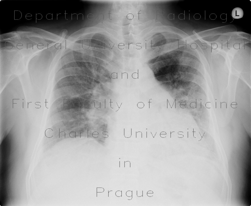 Radiology image - Lung fibrosis, alveolitis: Thorax, Lung: X-ray - Plain radiograph