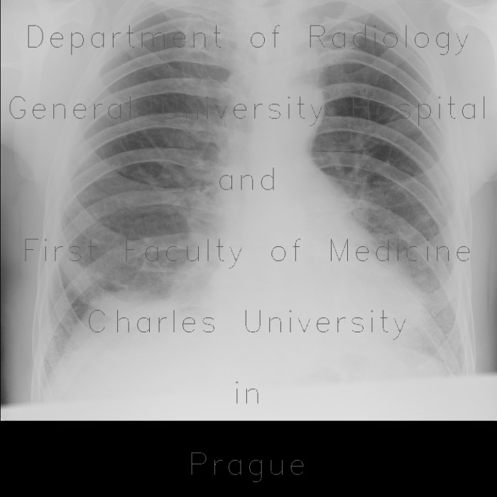 Radiology image - Lung fibrosis, basal: Thorax, Lung: X-ray - Plain radiograph