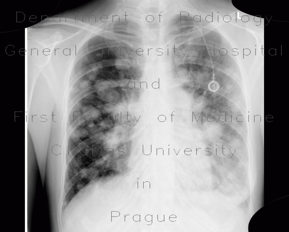 Radiology image - Lung metastases, cannon ball metastases: Thorax, Lung: X-ray - Plain radiograph