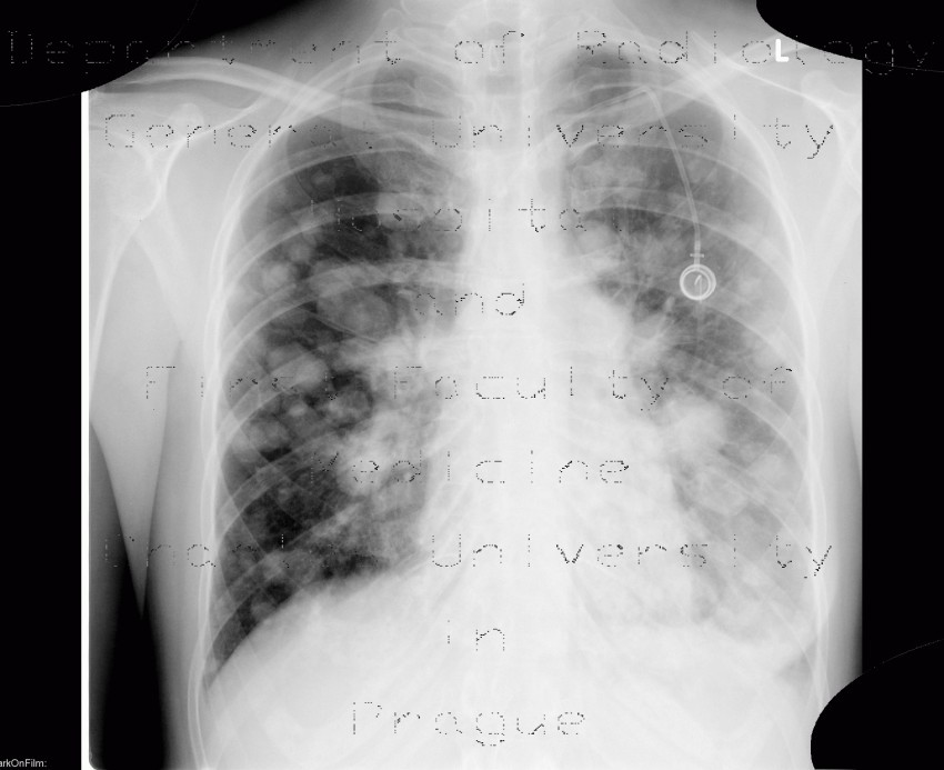 Radiology image - Lung metastases, canon ball: Thorax, Lung: X-ray - Plain radiograph