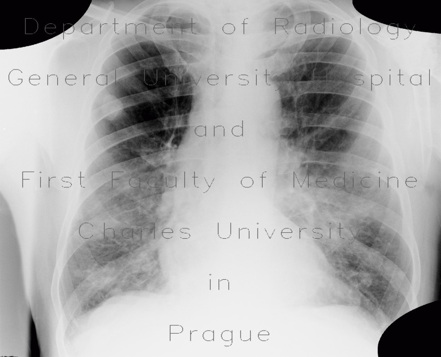Radiology image - Lung metastases, cavitated metastases, bladder carcinoma: Thorax, Lung, Urinary tract: X-ray - Plain radiograph