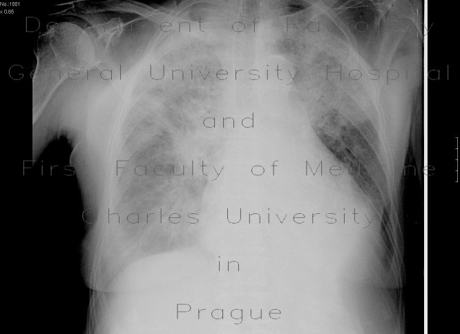 Radiology image - Lung oedema: Thorax, Heart, Lung, Mediastinum and pleural cavity: X-ray - Plain radiograph