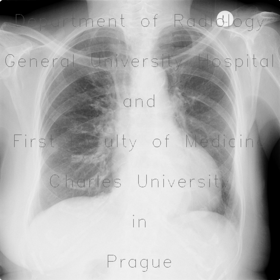Radiology image - Lung opacity, chest radiograph, rib fracture, mimic of metastasis: Thorax, Bone, Lung, Oesophagus: X-ray - Plain radiograph