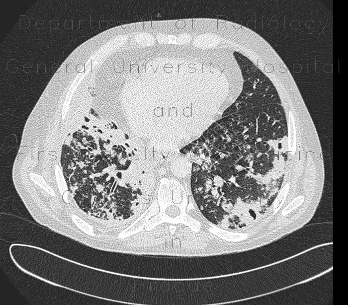 Radiology image - Lung tuberculosis, caseous pneumonia, HRCT: Thorax, Lung: CT - Computed tomography
