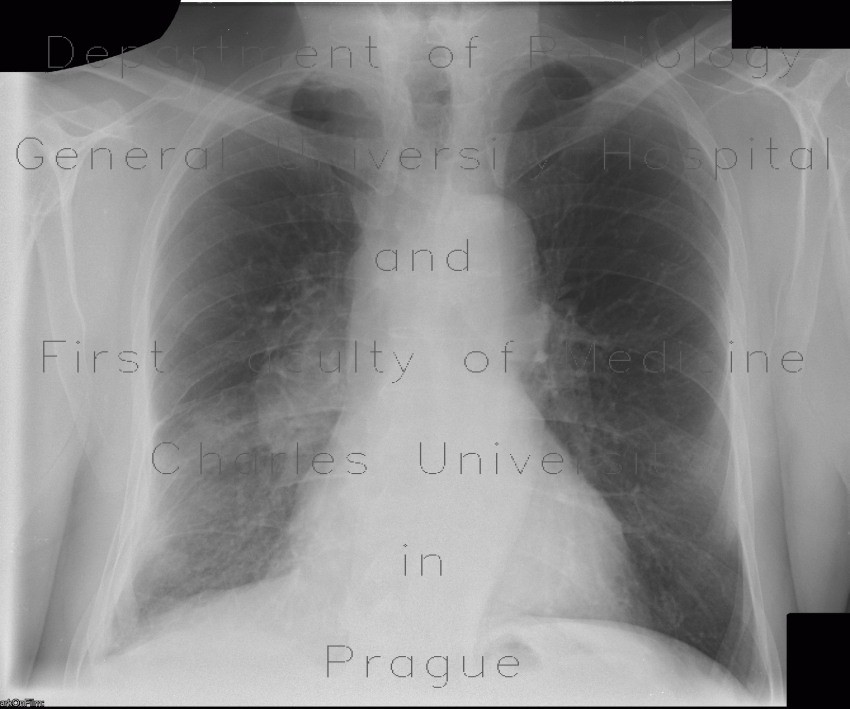 Radiology image - Lung tumour, hilar lymphadenopathy, second radiograph: Thorax, Lung, Mediastinum and pleural cavity: X-ray - Plain radiograph