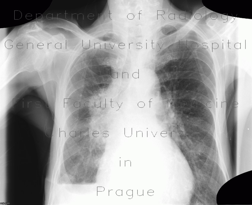 Radiology image - Lung tumour, pleural effusion, hydropneumothorax: Thorax, Lung, Mediastinum and pleural cavity: X-ray - Plain radiograph