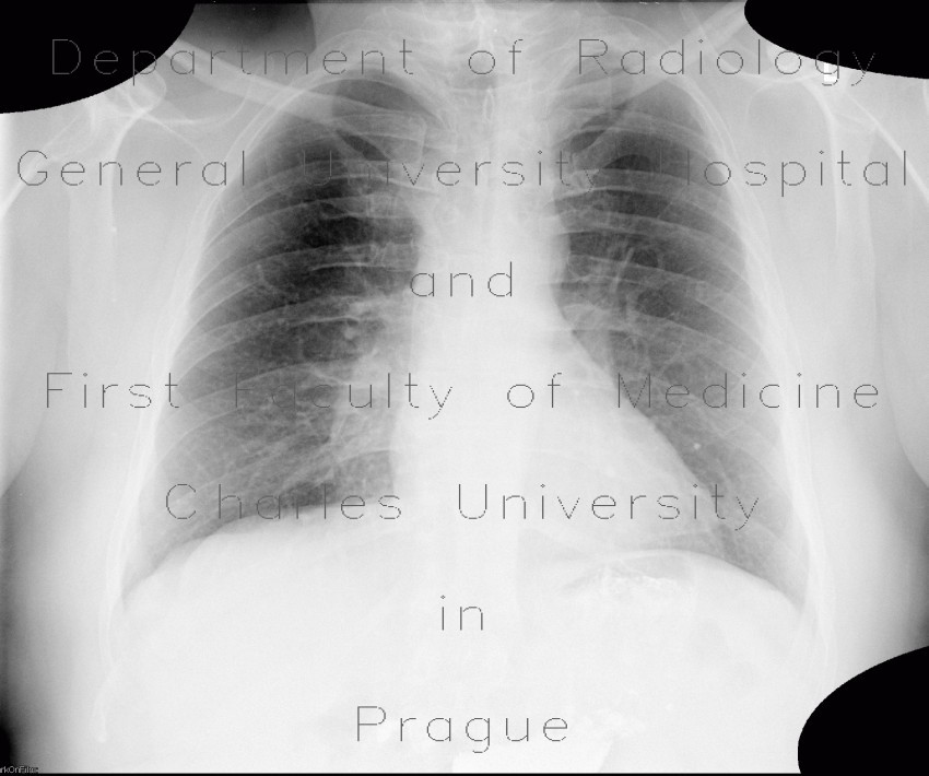 Radiology image - Lung tumour, postirradiation changes: Thorax, Lung: X-ray - Plain radiograph
