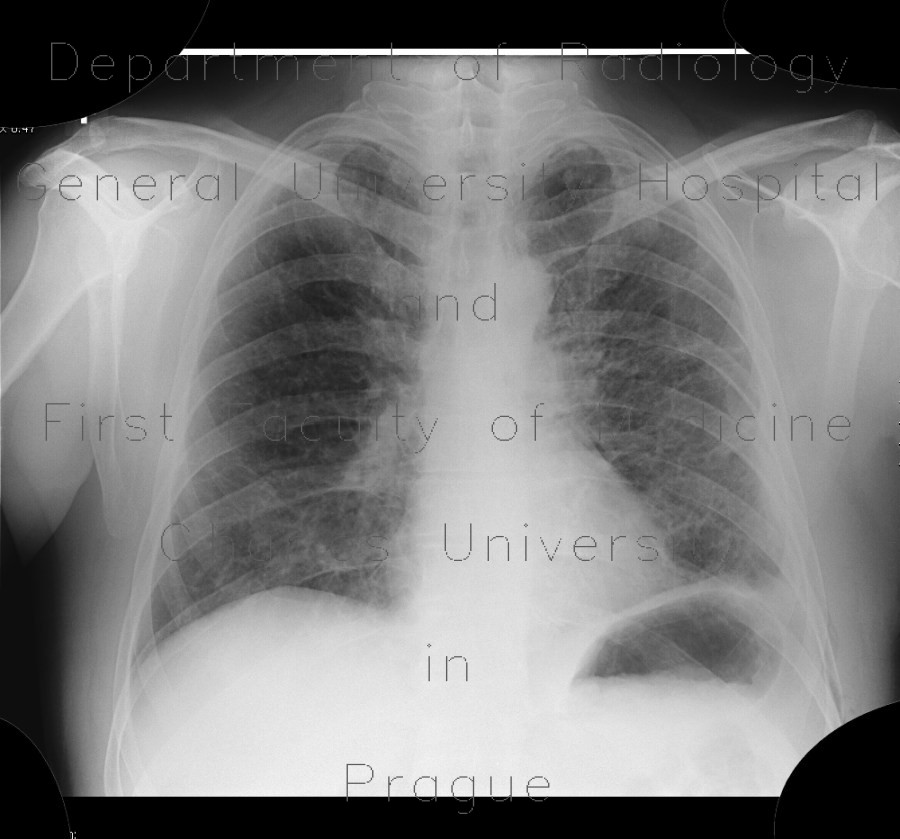 Radiology image - Lymphocytic interstitial pneumonia, cystic lung disease: Thorax, Lung: X-ray - Plain radiograph