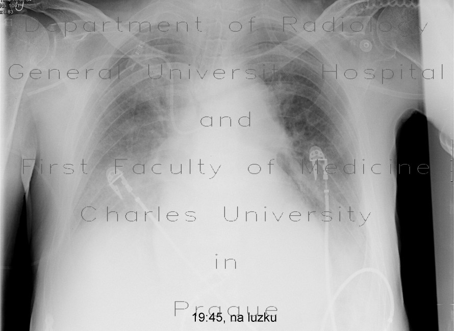 Radiology image - Malposition of central venous line: Thorax, Vessels: X-ray - Plain radiograph