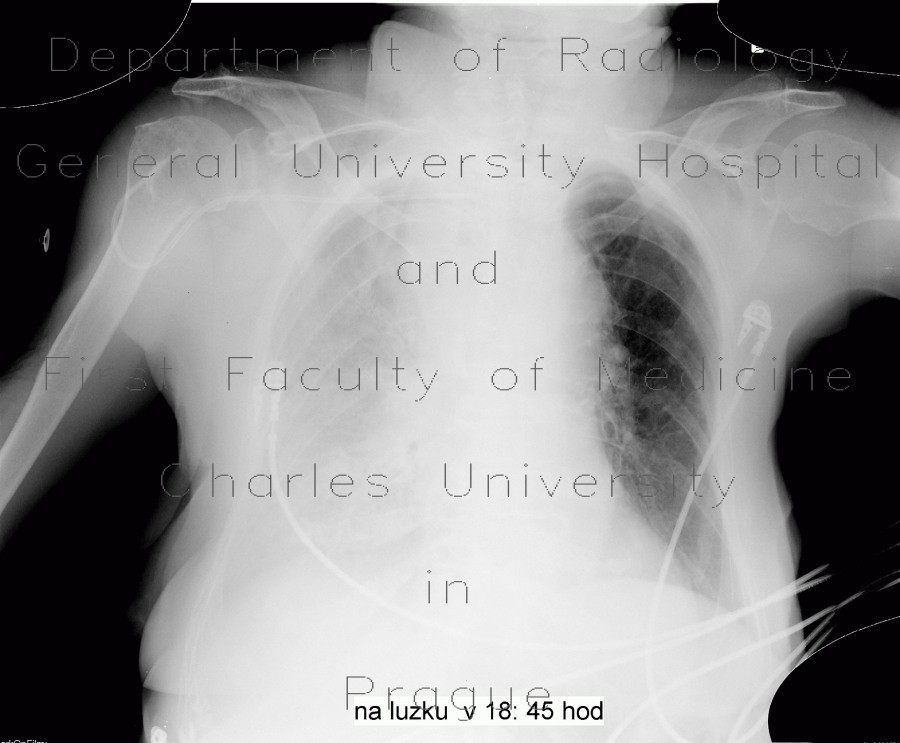 Radiology image - Malposition of central venous line, paravasat, fluidothorax: Thorax, Mediastinum and pleural cavity, Other, Vessels: X-ray - Plain radiograph